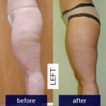 Before-and-After-Images-left-leg-2