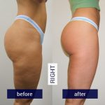 Before-and-After-Images-right-leg-2