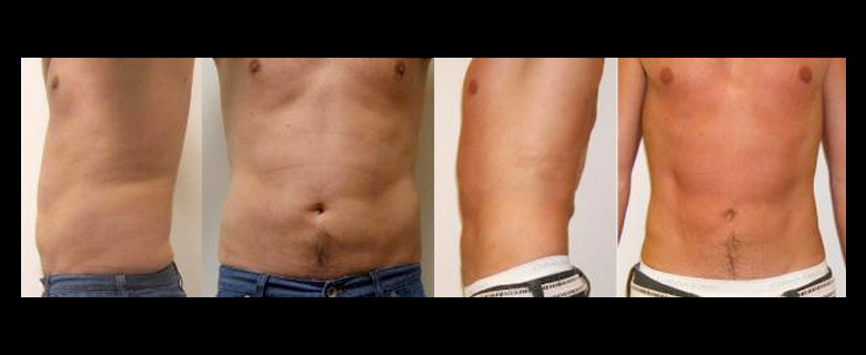 Before & After  -  ONE Series of Dermosonic Treatments in PerAmore