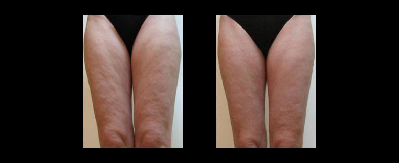 Before & After  -  One Series of Reaction Treatments