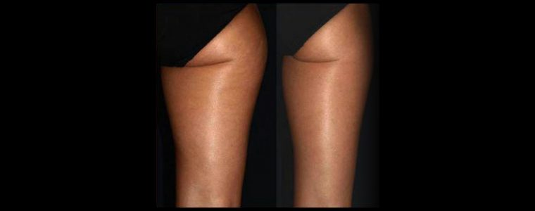 Smoothshapes Treatments - Our most remarkable system for visible results