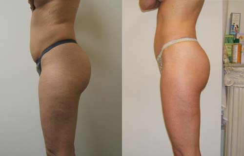 V-FORM - Our most remarkable system for visible results